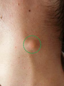 アテローム 炎症性粉瘤(痛みのある化膿した赤い腫れがある場合)の治療
